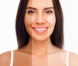 Skin-Whitening-Treatment