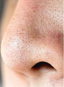 Pore Peel™