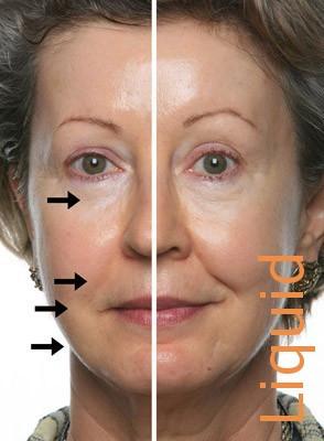 DMAE (SkinTight MD™) Liquid